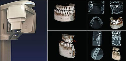 歯科用 CT